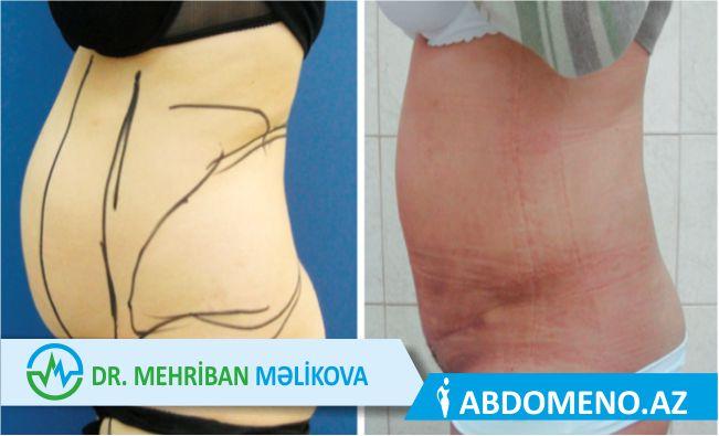 abdominoplastika emeliyyati